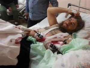 16 aprile 2014. Il comandante del Daesh Abu Muhammad, ferito in combattimento, viene curato all'ospedale statale di Hatay (fonte: Daily News).