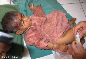 Giugno 2007. Bambina ferita nel bombardamento ISAF di Grishk. Fonte: RAWA/Middle East Times.