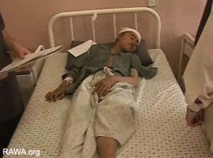 Ottobre 2006. Quattordicenne ferito dai bombardamenti NATO a Panjwaye. Fonte: RAWA.
